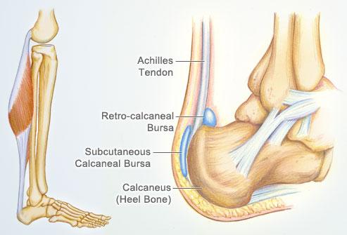 achilles_tendon